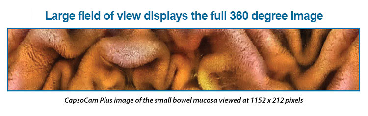Large field of view displays the full 360 degree image